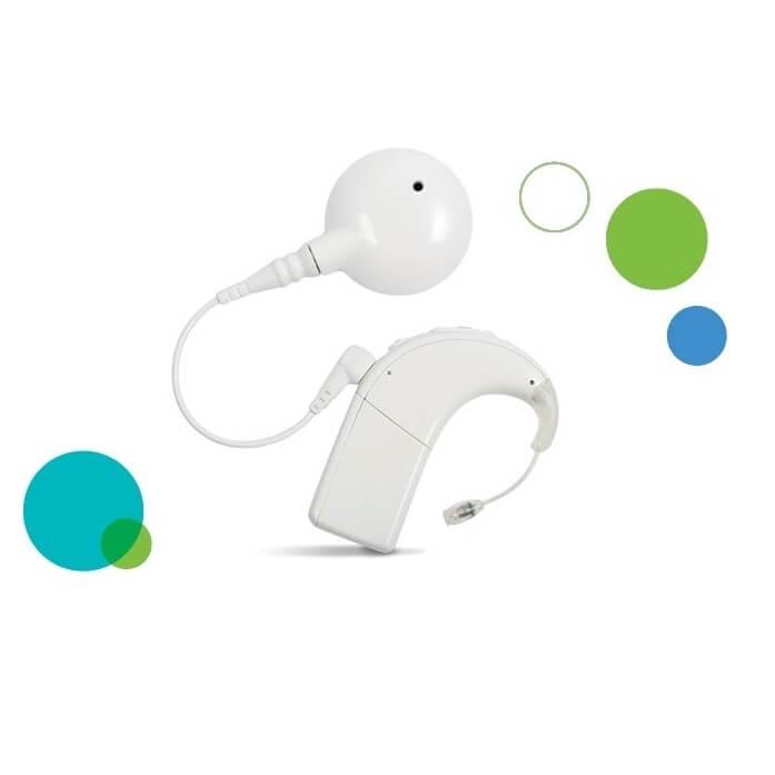 kochlearinio implanto procesorius Naida